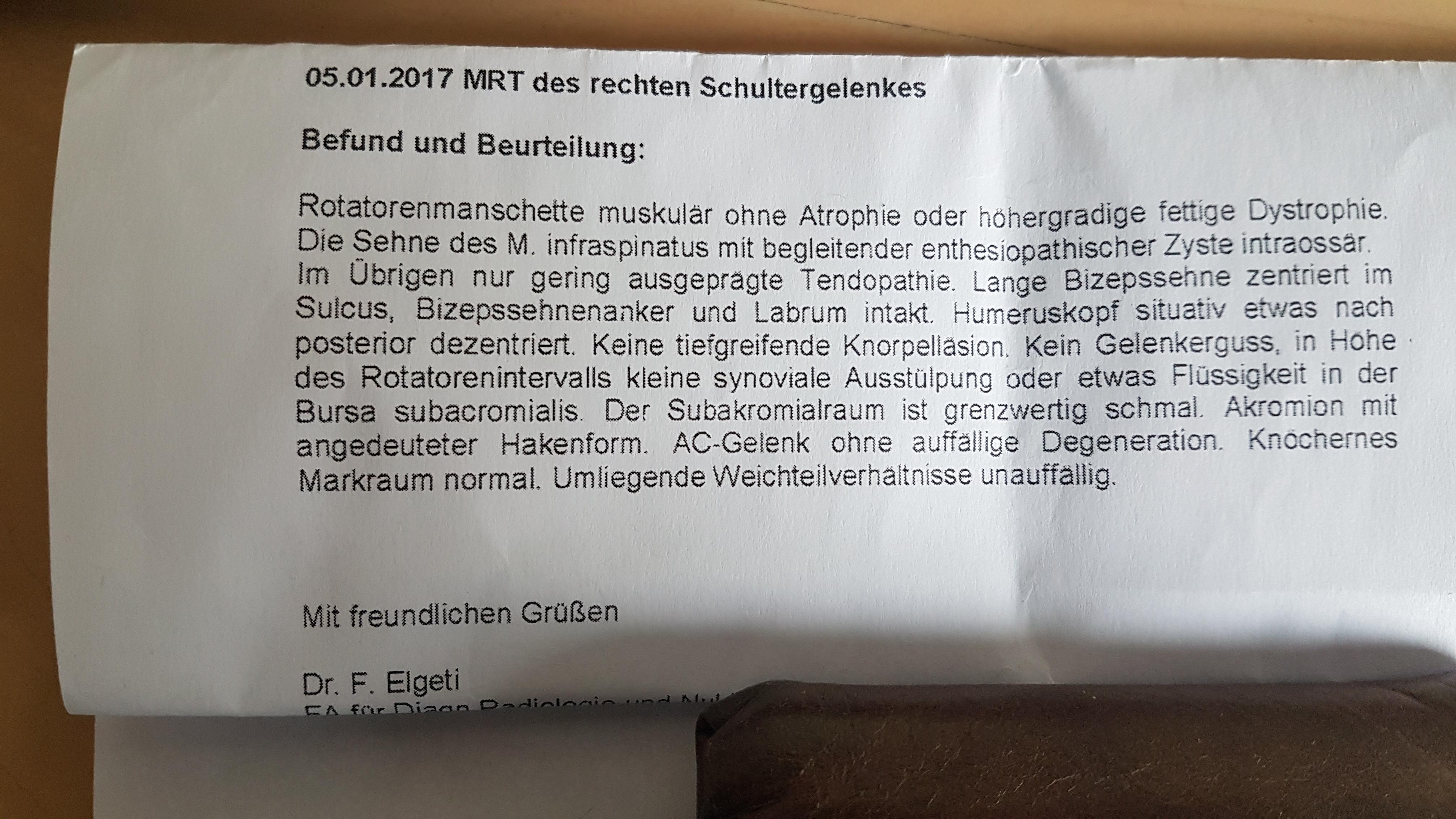 Gemütlich Bursa Schulter Anatomie Zeitgenössisch - Menschliche ...