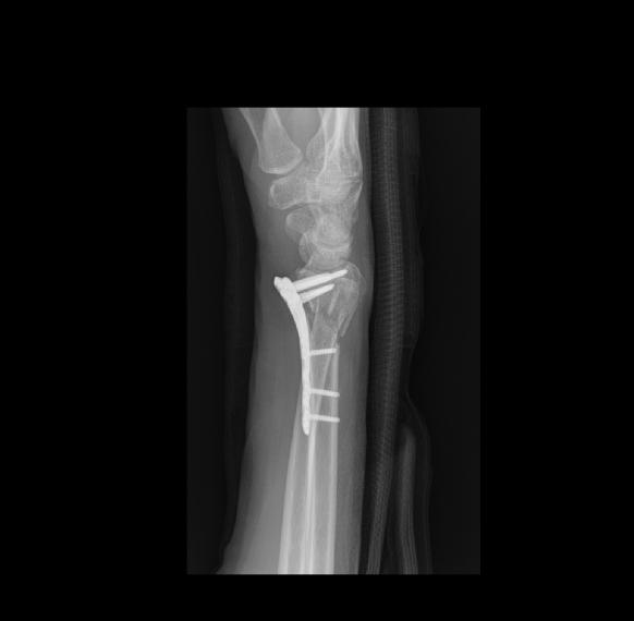 Röntgenbild 2.jpg