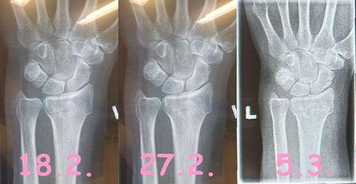 röntgenfolge.jpg