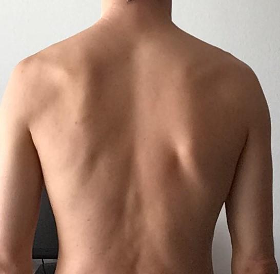 ganzer Rücken.jpg